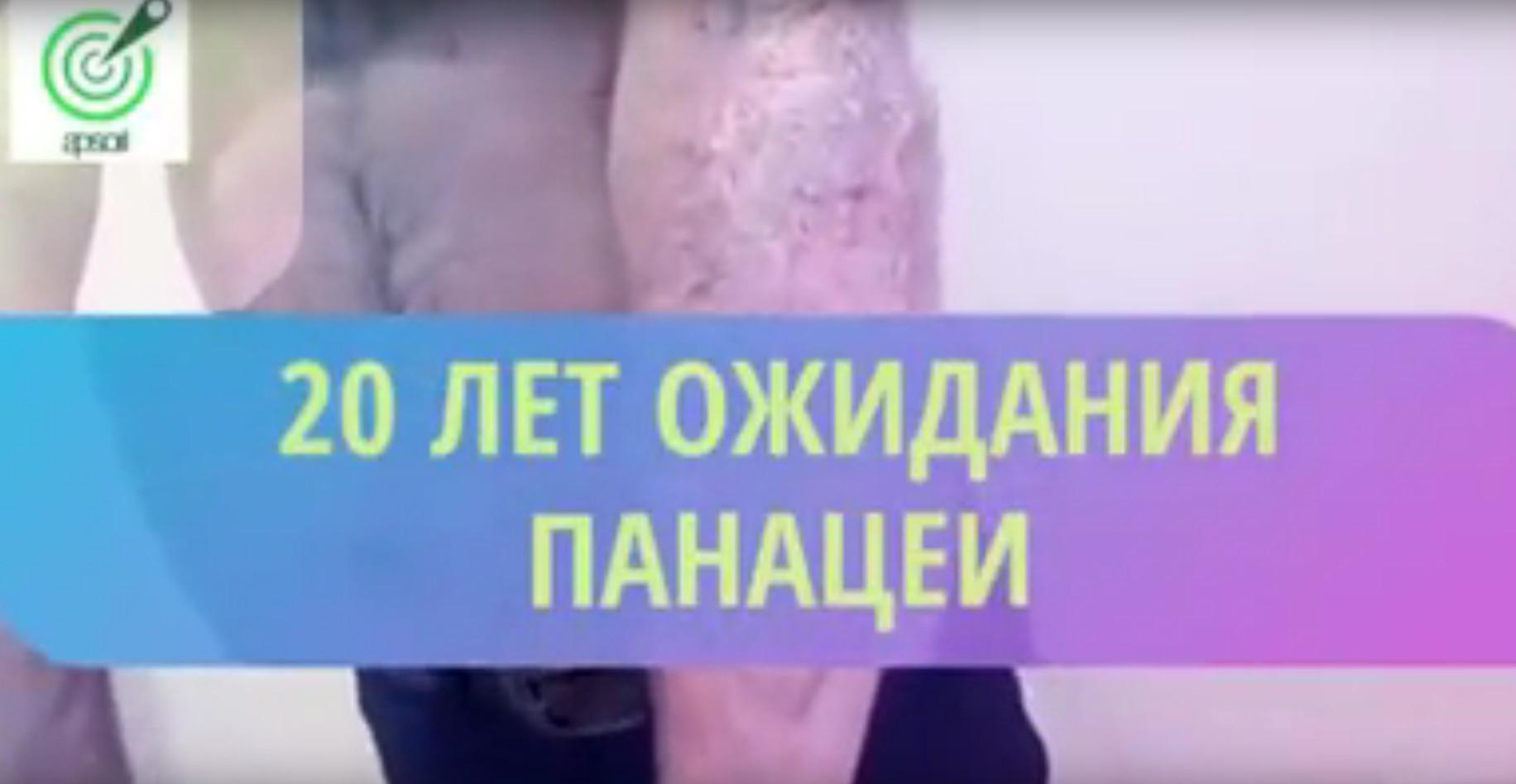 Целитель из Дагестана Шамиль Баркуев показал результаты лечения псориаза