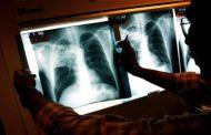 В России выявили самый смертоносный туберкулез в мире