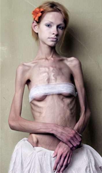 20_anoreksiya