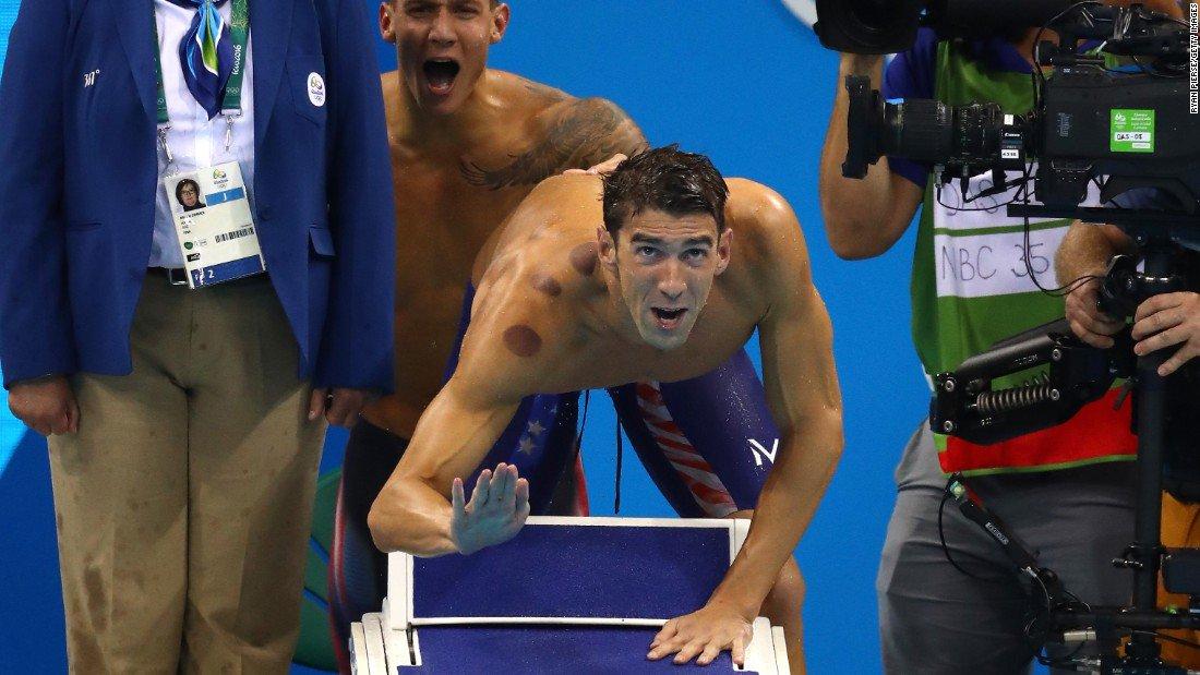 Что происходит на Олимпиаде: диваны, банки, водоросли