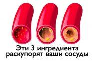 Как очистить ваши сосуды с помощью всего 3-х ингредиентов