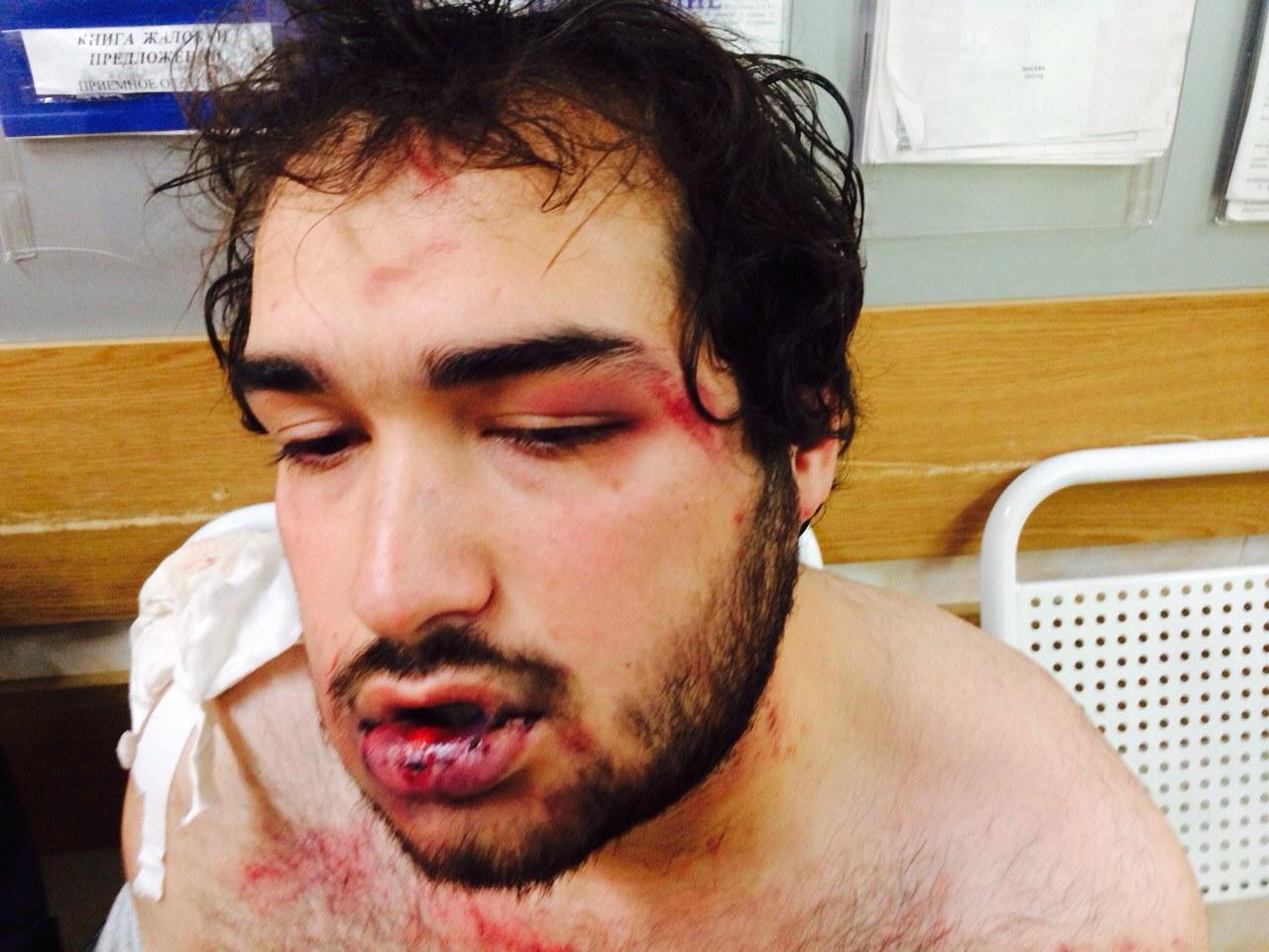 В Москве отказались лечить избитого полицейскими дагестанца (Видео)